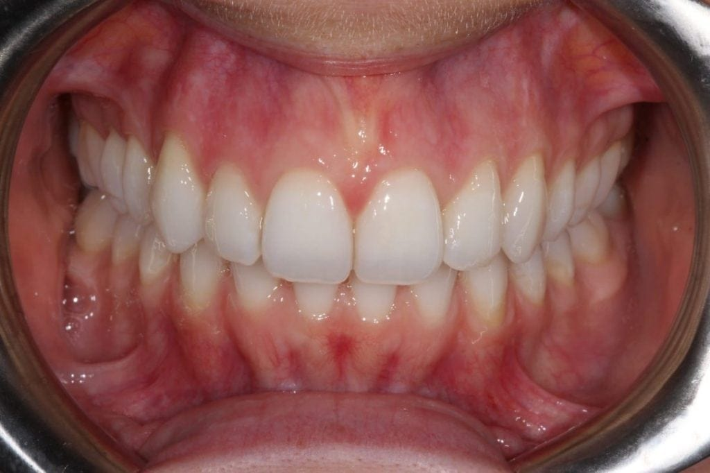 Invisalign after with Claydon Dental Cheltenham