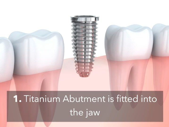 Dental Implants Cheltenham 1