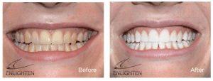 Enlighten teeth whitening Cheltenham