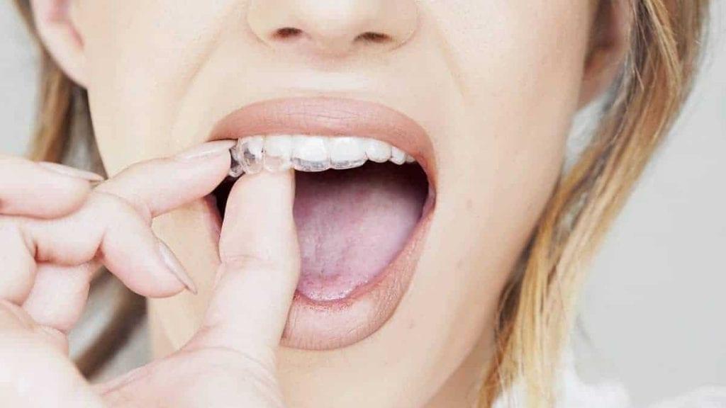 INVISALIGN Adult braces