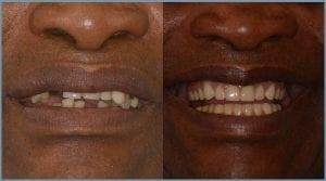 Leonard Before and After Dental Implants