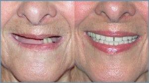 Guided Dental Implants in Cheltenham 2