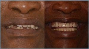 Guided Dental Implants in Cheltenham 3