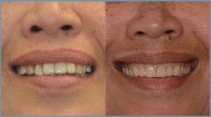 Guided Dental Implants in Cheltenham 4