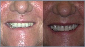Guided Dental Implants in Cheltenham 5
