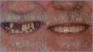 Guided Dental Implants in Cheltenham 6