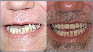 Everything you need to know about dental implants 3