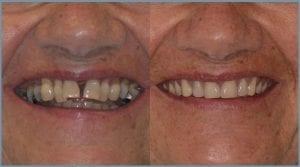 Guided Dental Implants in Cheltenham 8